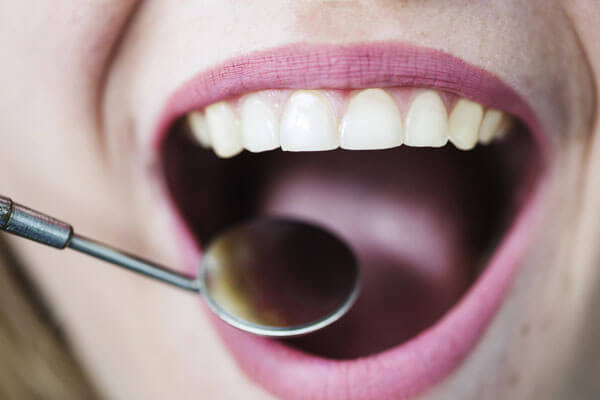 Bad taste in mouth: Causes and treatment - Sooth Dental
